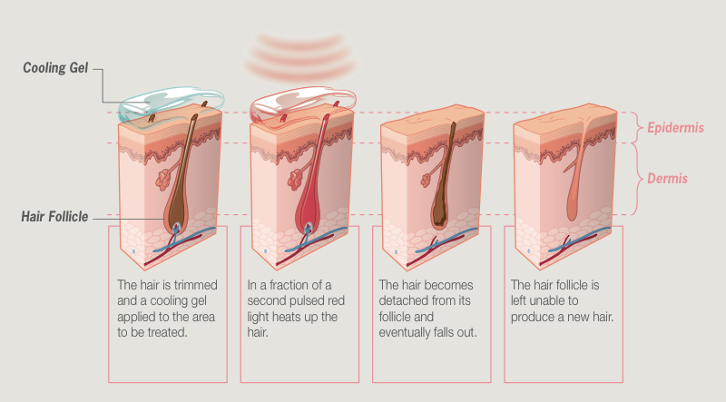 How Permanent Hair Reduction Works Diagram